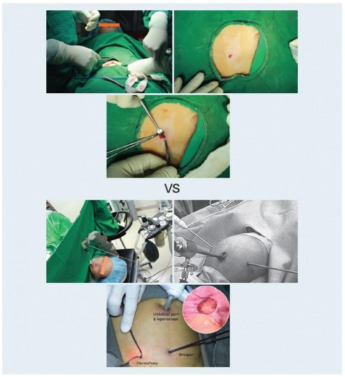 고위결찰술과 복강경 소아탈장수술 비교 사진