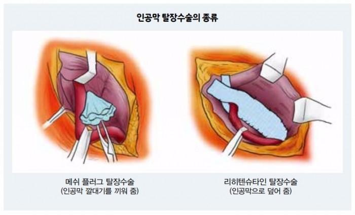 인공막 탈장수술의 종류