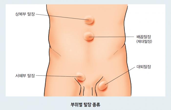 부위별 탈장종류